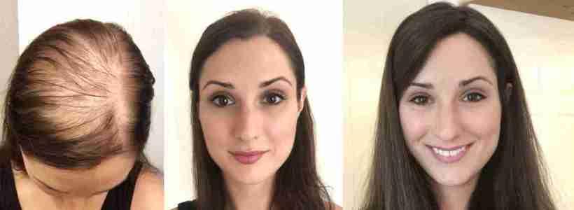 protesi capelli roma